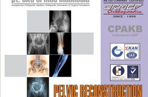 Pelvic Implant